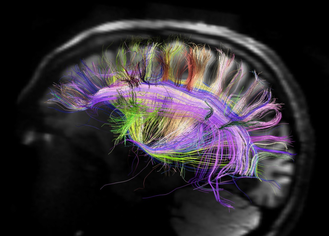 Brain Image Wiring