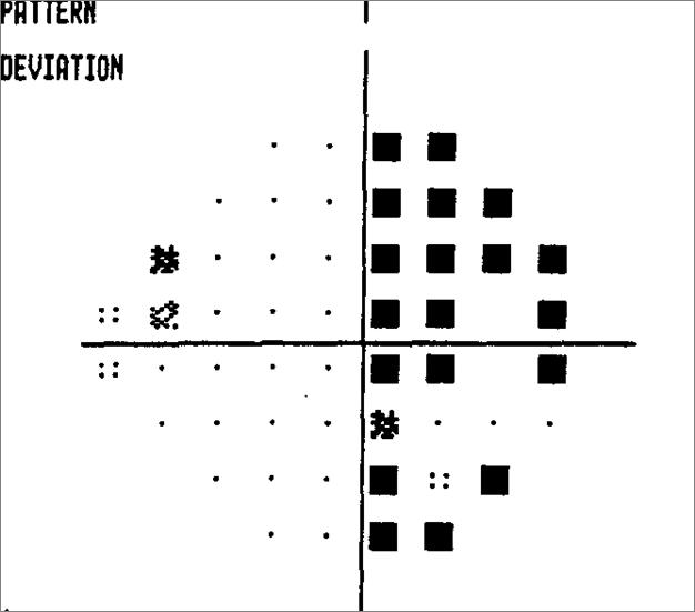 Ruth Pattern Deviation Initial OD