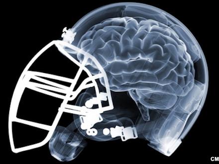helmet_brain