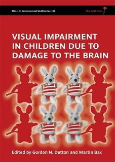 visual-impairment-in-children-due-to-damage-to-the-brain-clinics-in-developmental-medicine