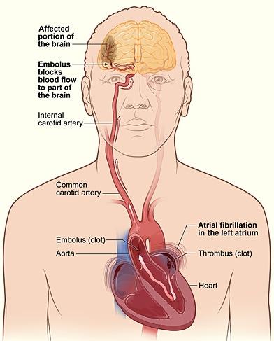 HeartBrain44stroke