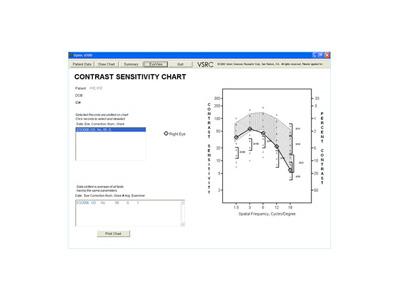CSF Curve