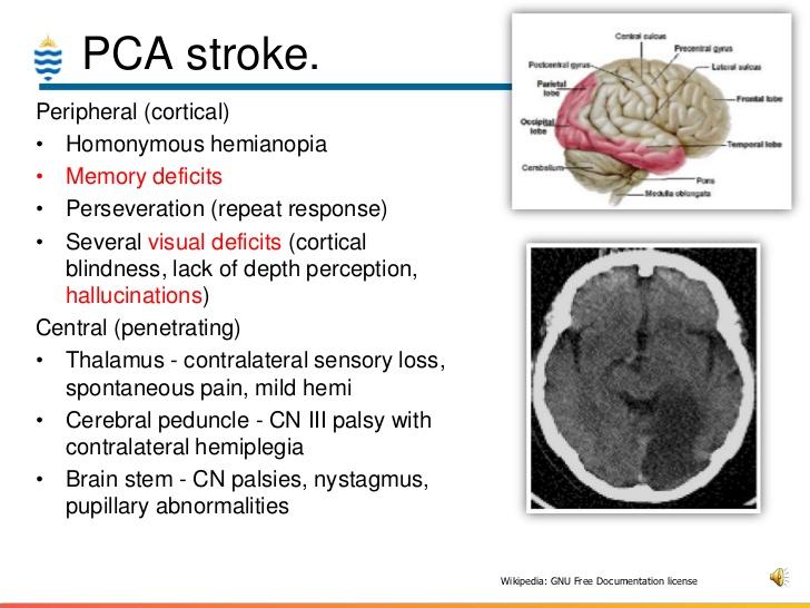 PCA Stroke
