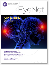 eyenet-concussion
