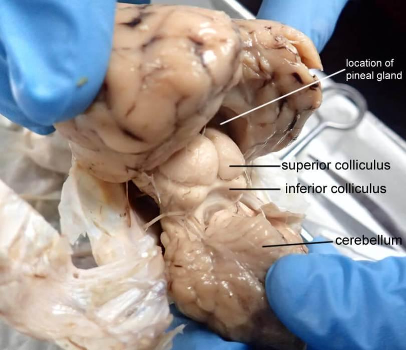 superior-colliculus-labeled-1