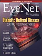 May 2013 EyeNet Cover