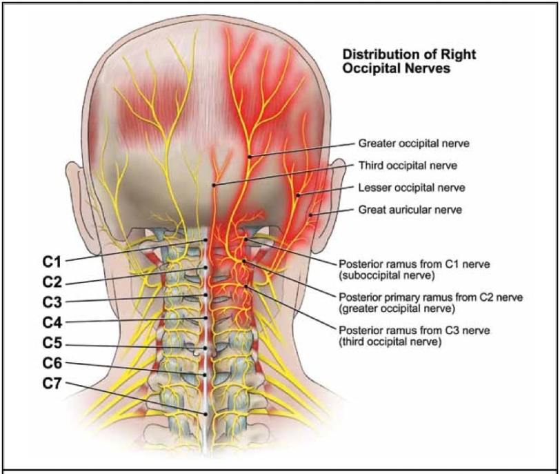 occipital-nerve-block