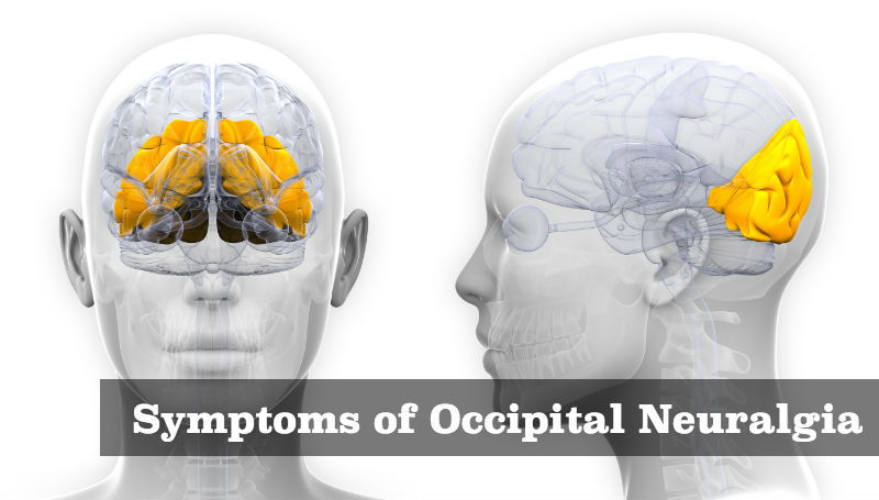 Symptoms-of-Occipital-Neuralgia